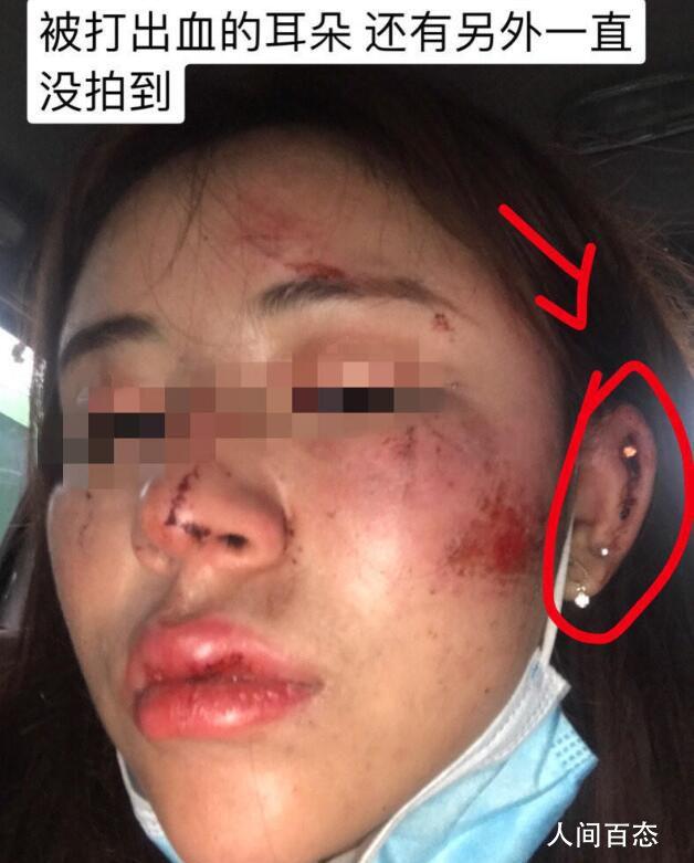 警方通报成都女子深夜遭调戏殴打 两名嫌疑人被抓