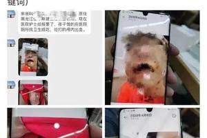 4岁女童被虐打 父亲及同居女友被刑事拘留
