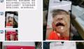 黑龙江虐童案生父继母被批捕 4岁女童仍陷昏迷状态