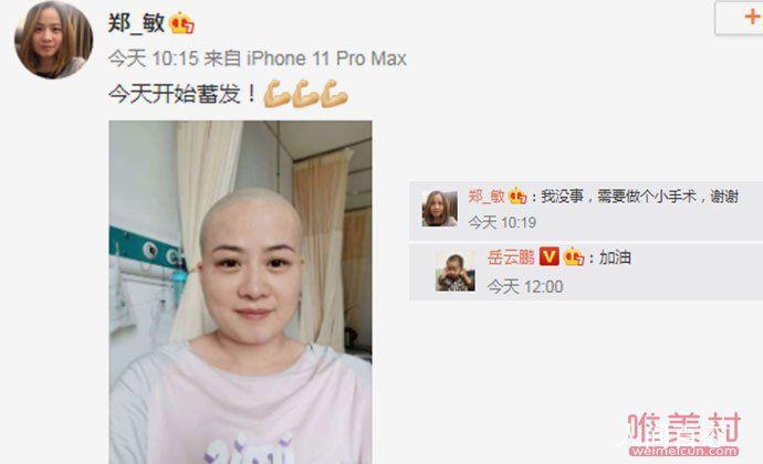 岳云鹏老婆回应生病剃光头 郑敏是生了什么病