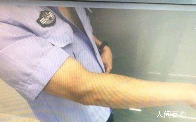 家暴丈夫打断辅警肋骨 该男子因涉嫌妨害公务罪被警方采取刑事强制措施