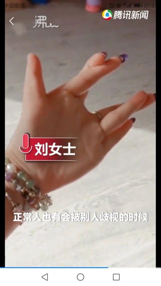 女子天生12根手指自嘲六指琴魔 这样奇特的手划拳占优势